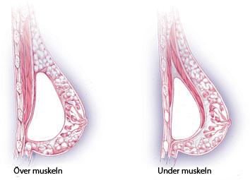 bröstförstoring gelehallon före efter